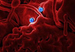 Les huiles essentielles efficaces contre le coronavirus: vrai ou faux?
